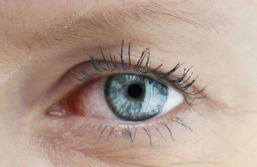 depositphotos_26645665-stock-photo-tired-capillary-human-eye[1]